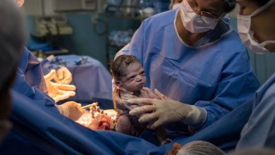 Photo of Grumpy baby: Displeased newborn stares down doctors immediately after birth